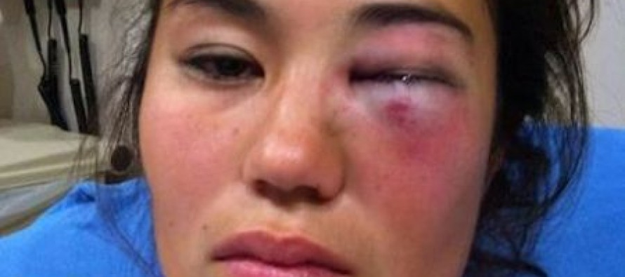 """St. Louis Woman Faces Reconstructive Surgery After Being Slugged During """"Knock Out"""" Game"""