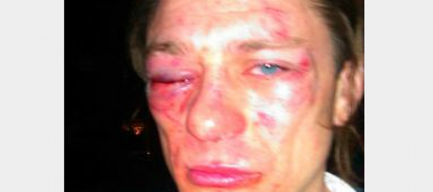 San Antonio Man Victim of Knock-Out Game, Media Mum on Race of Attackers