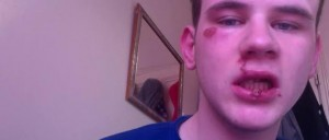 Gay British Teen lies about violent attack