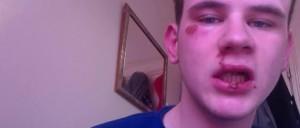 Gay British Teen lies about violent attack