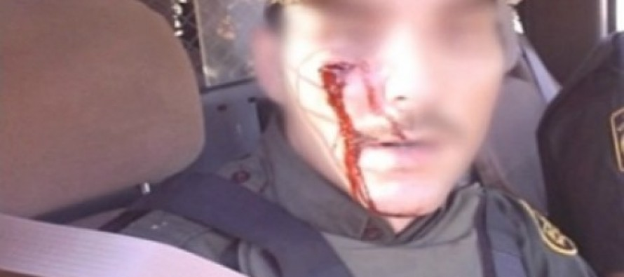 GRAPHIC Photos of Wounded Border Agents Show Gov. Rick Perry Was Right