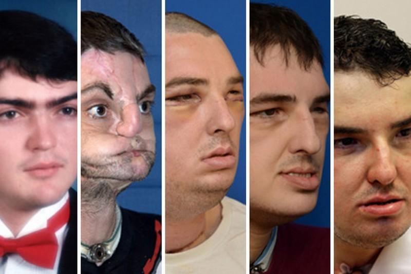 Face-transplant-recipient-Richard-Norris-2005952
