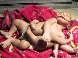 eight-limbed-baby-god-boy-claim
