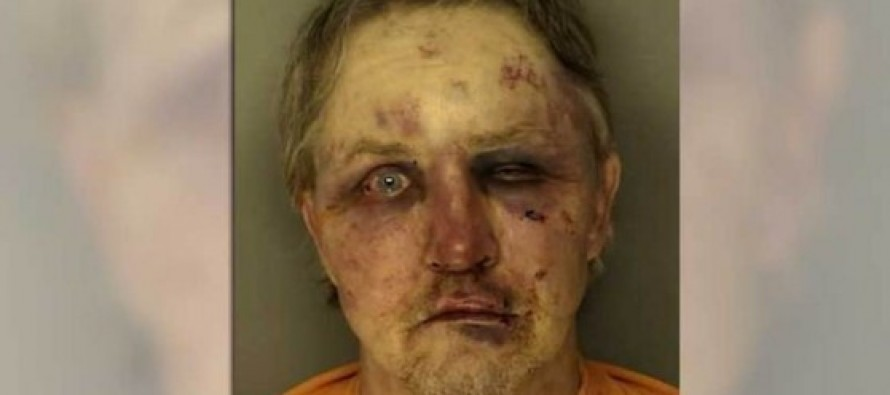 Suspect in Sexual Assault Case Severely Beaten by Victim's Acquaintance