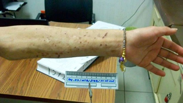 VID Abused  Woman Escapes Slavery In Mexico