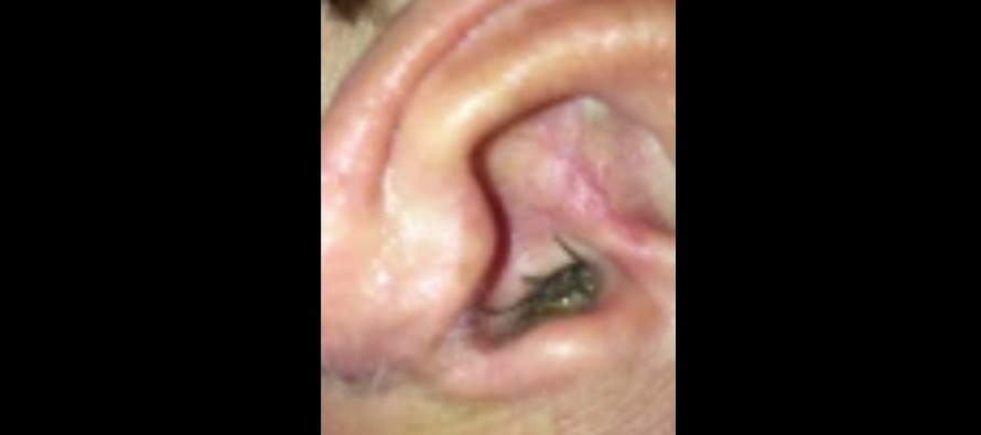 VIDEO: Man Discovers the Pain in His Ear is Actually a Live SPIDER