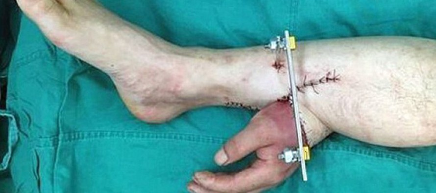 Man's severed hand is grafted to his LEG for a month to keep it alive…before doctors re-attach it