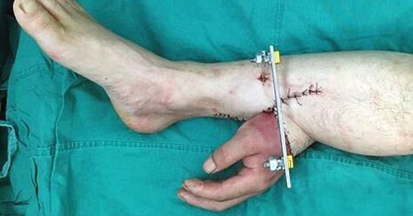 Surgeons Save Hand By Grafting It To Leg