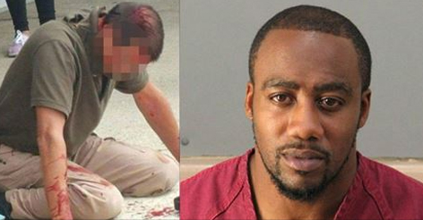 Police Officer Beaten by Man Reveals Why He Didn't Shoot Attacker… This Is Pure Insanity