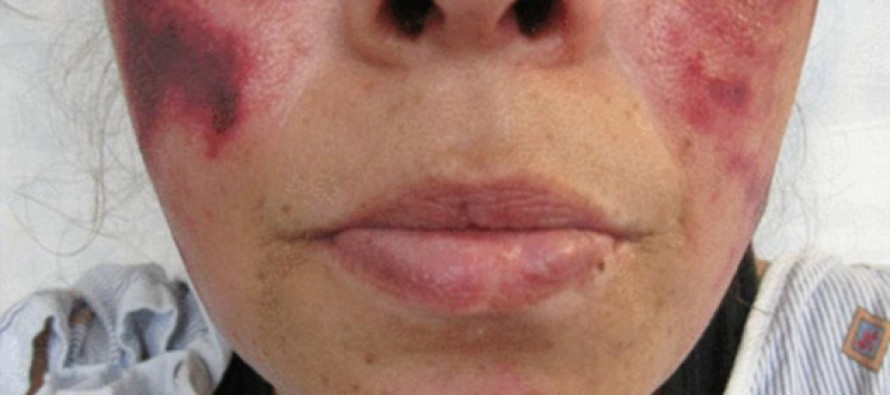 Woman's DISGUSTING Habit Transforms Her Face Overnight