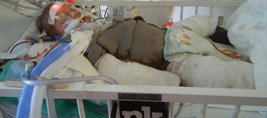 This Toddler Lost Her Leg After This Every-Day Item Found In Many Kitchens EXPLODED