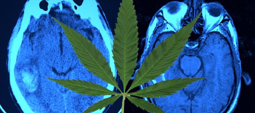 New Study: Smoking Marijuana Causes Brain Damage
