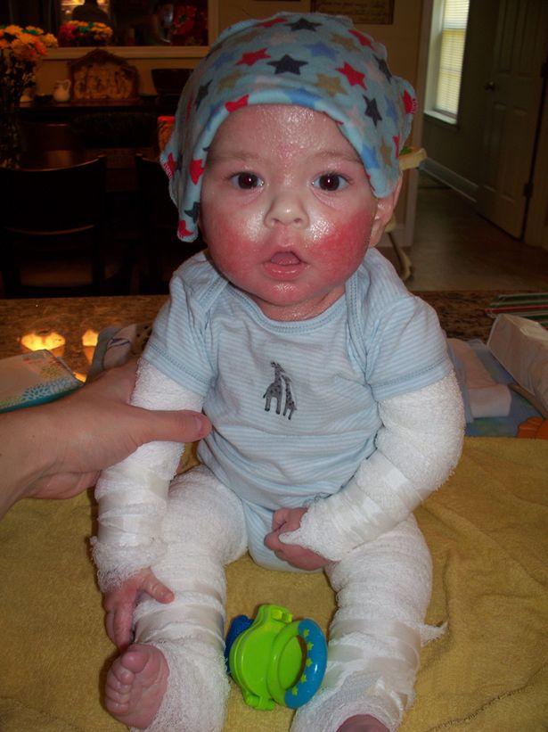 Baby Skin2