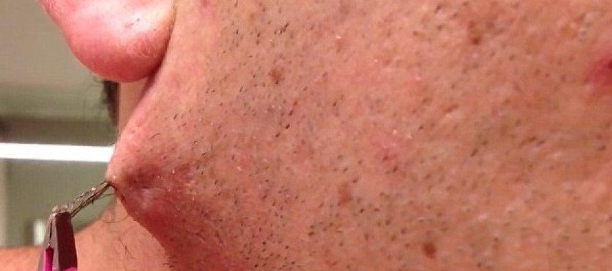 He Felt a Strange Bump on His Neck… Never Expected to Pull THIS Out With Tweezers