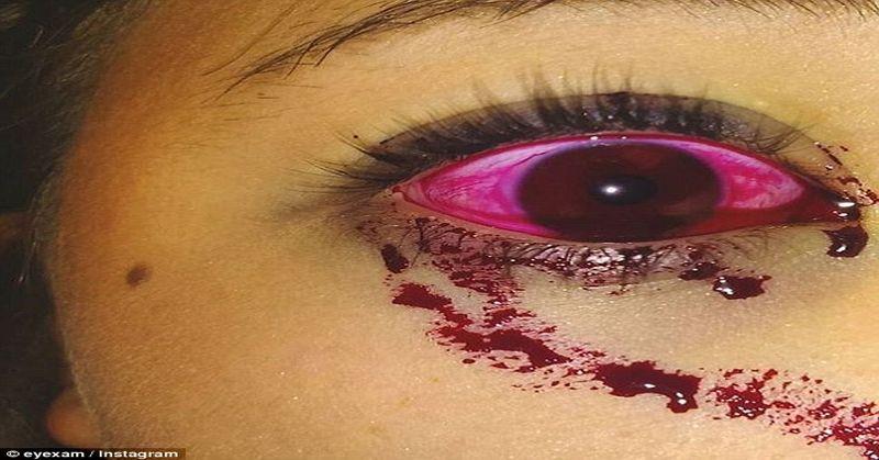 eye blood