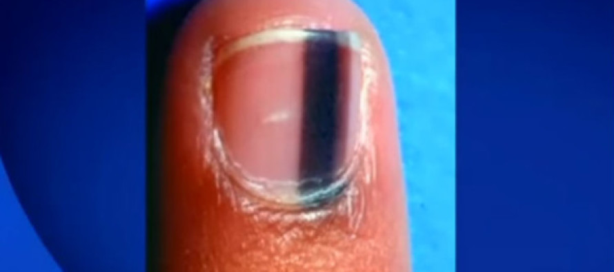 If You Ever See a Black Mark Like This on Your Fingernail, Go to the Hospital ASAP – Here's Why…