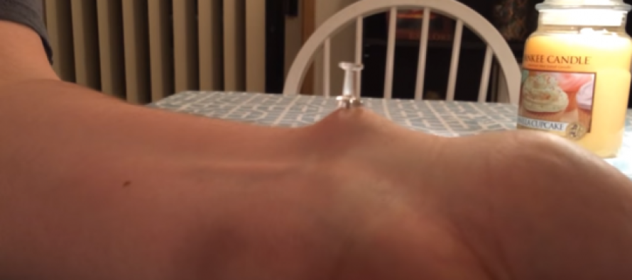 Man Uses Tack to Pop MASSIVE Zit – Watch What Squirts Out