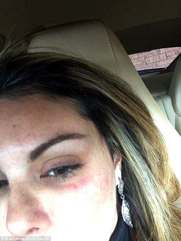 liziane gutierrez-black eye