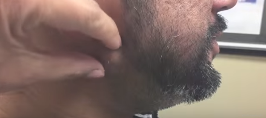 He Had a HUGE Bump on His Chin… Never Thought THIS Would Squirt Out When He Squeezed It