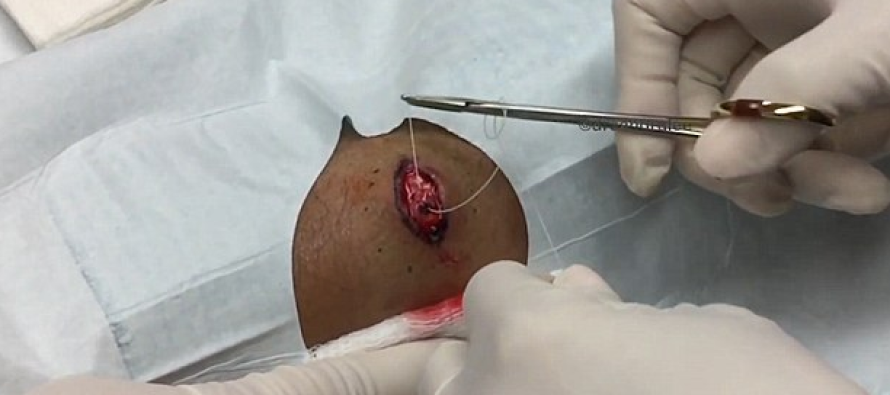 The Moment a Glob of Puss the Size of a GOLF BALL Is Pulled Out of Man's Arm