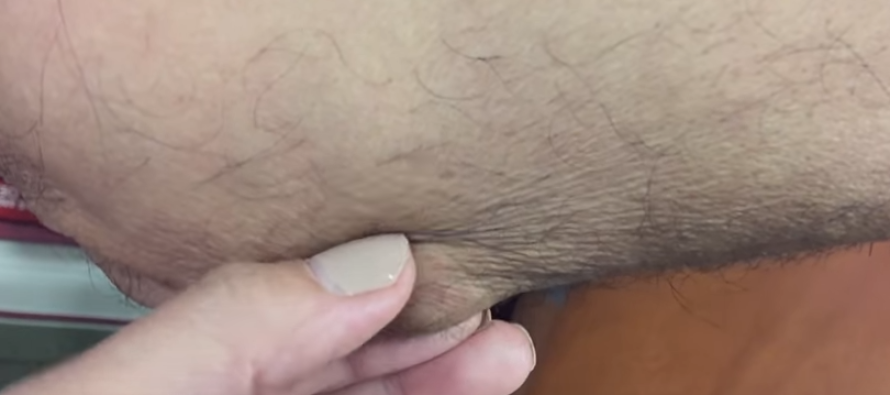 He Had a Strange Bump on His Elbow… Watch What Came Out When He Squeezed It [GRAPHIC]