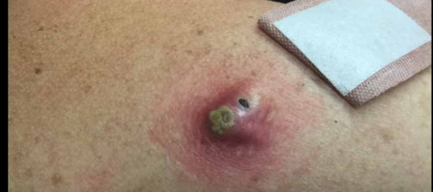 She Had a HUGE Blackhead on Her Back… When She Popped It? OMG!