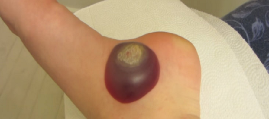 She Had a Huge Wart on Her Foot That Wouldn't Go Away… When She Popped It? OMG