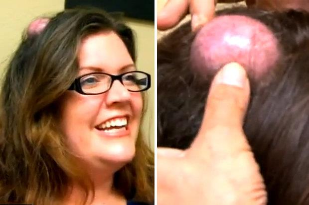 Woman-With-Cyst