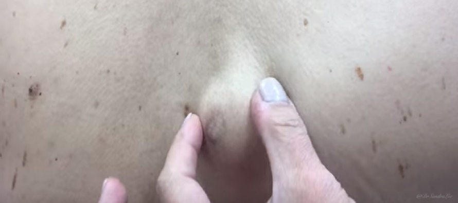 He Found a MASSIVE Lump on His Back… Watch What Happened When He Squeezed It