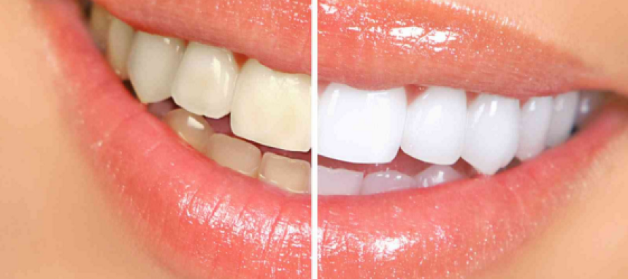 She Mixes Two Ingredients and Puts Them on Her Teeth. The Results? OMG