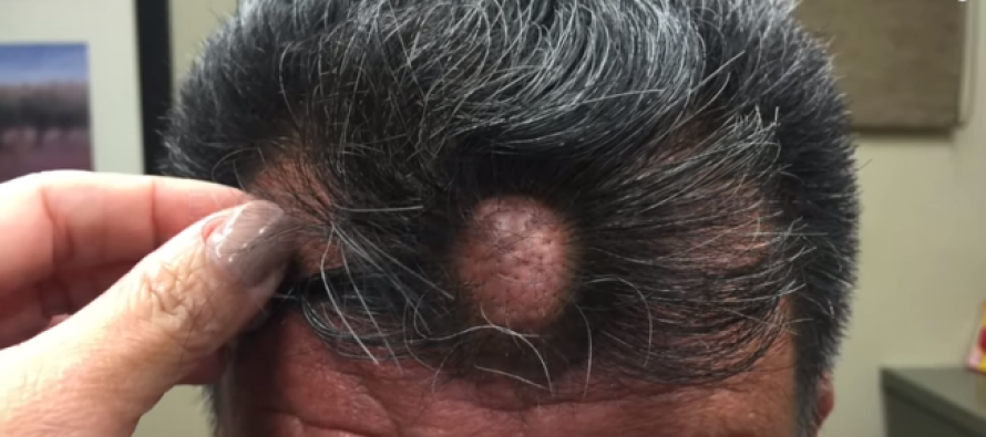 He Squeezed the HUGE Bump on His Head… Was Shocked When THIS Squirted Out