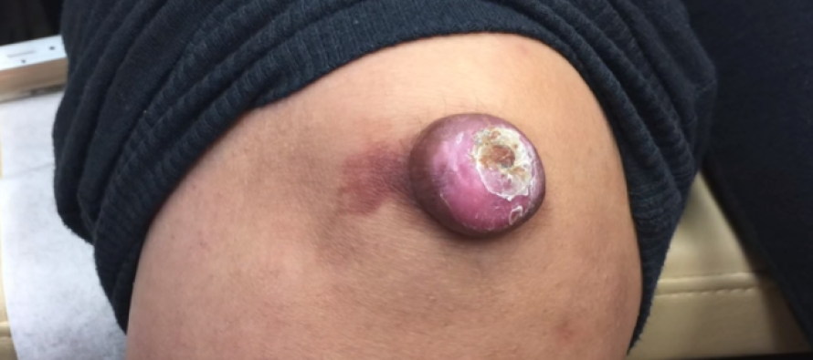Watch 'Dr. Pimple Popper' Treat This MASSIVE Lump on Knee