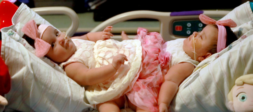 Conjoined Twins Were Successfully Separated, But It's Not Over Yet