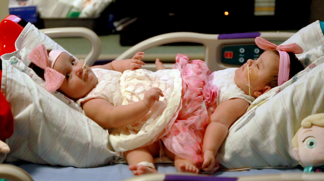 This Feb. 10, 2016 photo provided by Driscoll Children's Hospital shows conjoined twin sisters Scarlett, left, and Ximena Hernandez-Torres at Dirscoll Children's Hospital in Corpus Christi, Texas. Doctors in Texas will attempt to separate the two 10-month-old sisters born conjoined below the waist. The girls share a colon and bladders that will be reconstructed. Their identical triplet sister, Catalina, was born without serious health issues. (Joshua Thelin/Driscoll Children's Hospital via AP)
