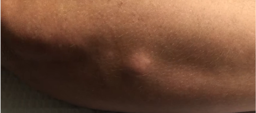 She Had a MASSIVE Bump on Her Arm… What Came Out When She Squeezed It? OMG…