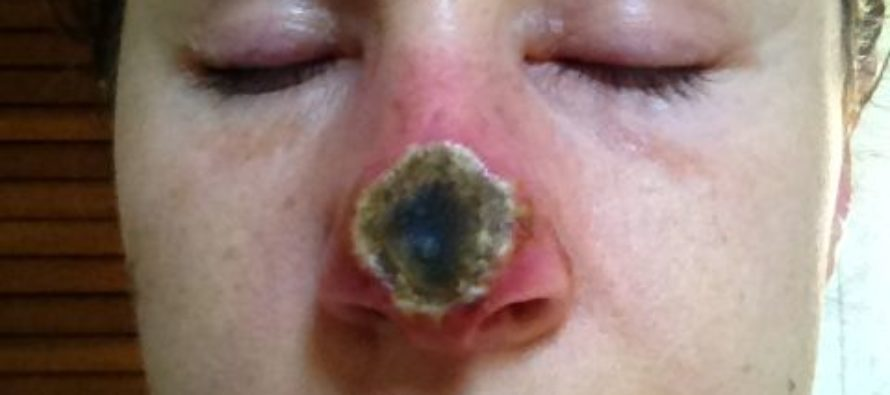 Woman Loses Half Her Nose – Cut Off After Herbal Remedy She Used For Skin Cancer ROTTED Her Face [VIDEO]