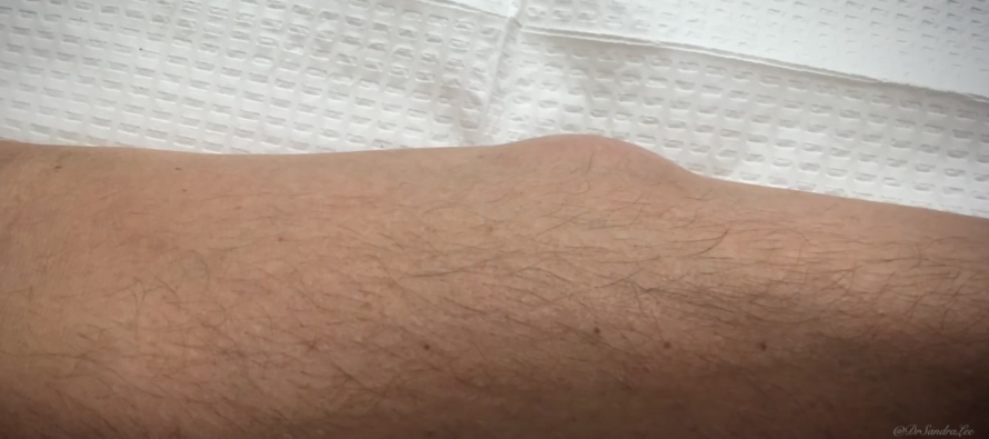 He Had a Massive Bump on His Forearm… Watch What Squirted Out When He Squeezed It [VIDEO]