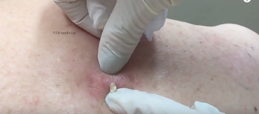 Watch Her Squeeze the MASSIVE Pimple on Her Back… [GRAPHIC] [VIDEO]