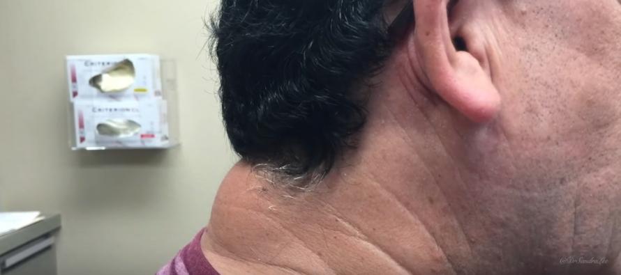 Watch Dr. Pimple Popper BLAST the Massive Zit on Man's Neck [VIDEO]