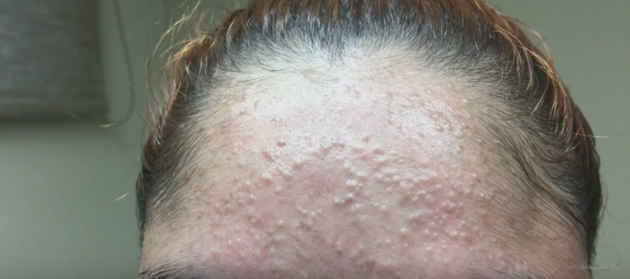 Watch Dr. Pimple Popper Squeeze All of These NASTY Zits [VIDEO]