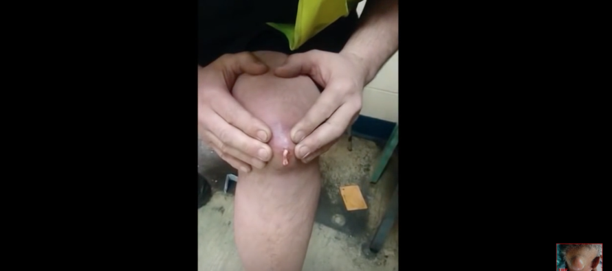 When He Squeezed the Enormous Bump on His Knee, He Didn't Think THIS Would Squirt Out… [VIDEO]