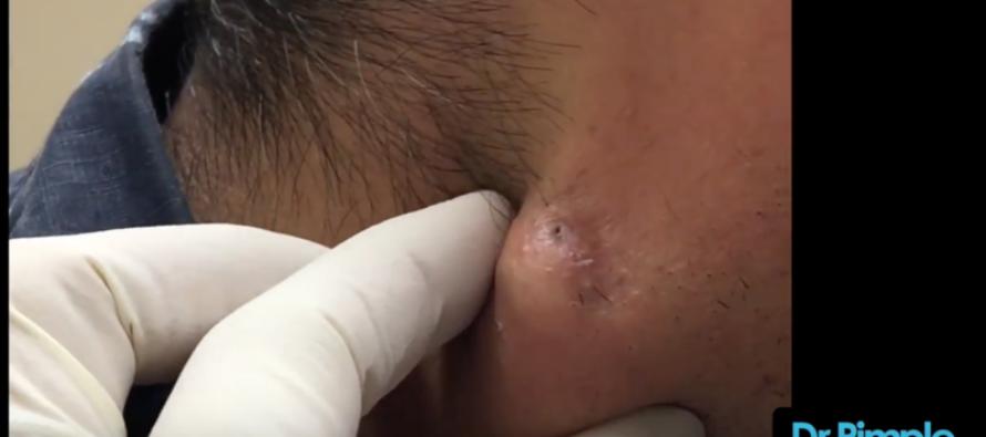 Watch Dr. Pimple Popper Blast This MASSIVE Neck Zit [GRAPHIC] [VIDEO]