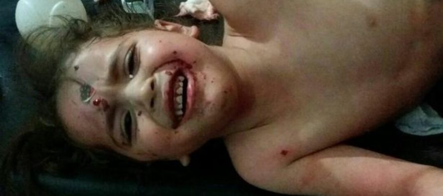 Kindergarten BOMBED! 3 kids dead, 25 injured, by forces possibly linked to Syrian President