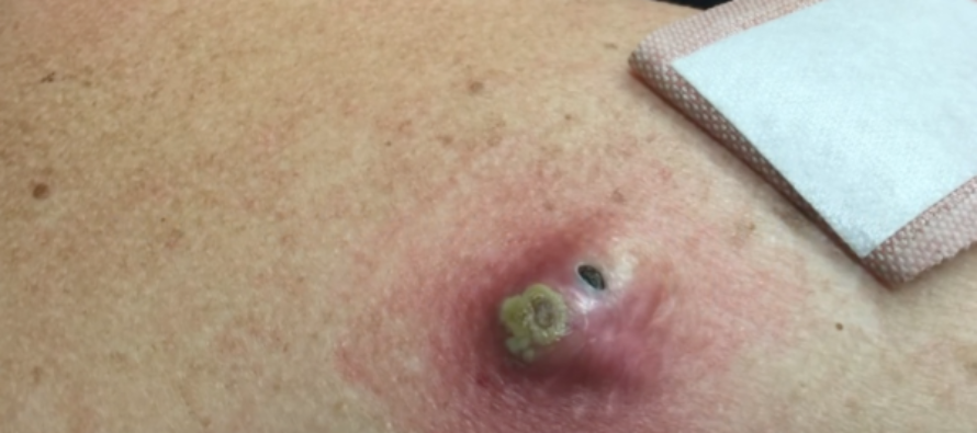 This May Be the BIGGEST Blackhead Dr. Pimple Popper Ever Blasted [VIDEO]