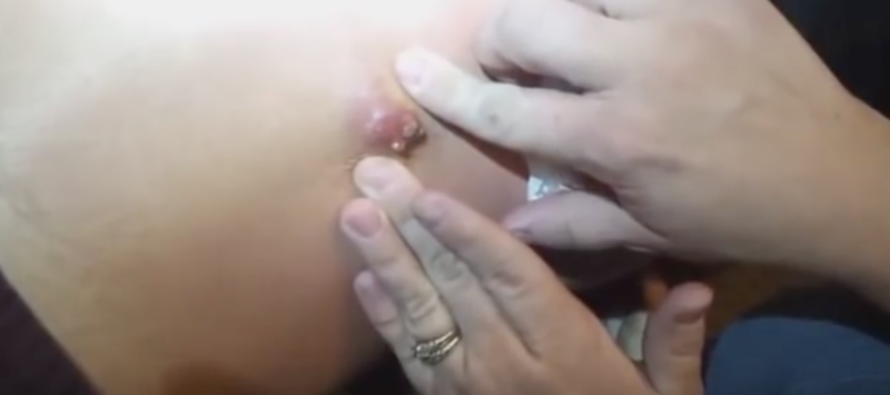 GRAPHIC: The Moment She Squeezed a MASSIVE Zit on Her Back [VIDEO]