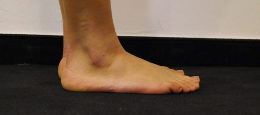 WARNING: DO NOT Walk Barefoot At The Gym – This Could Be You… [PHOTOS]
