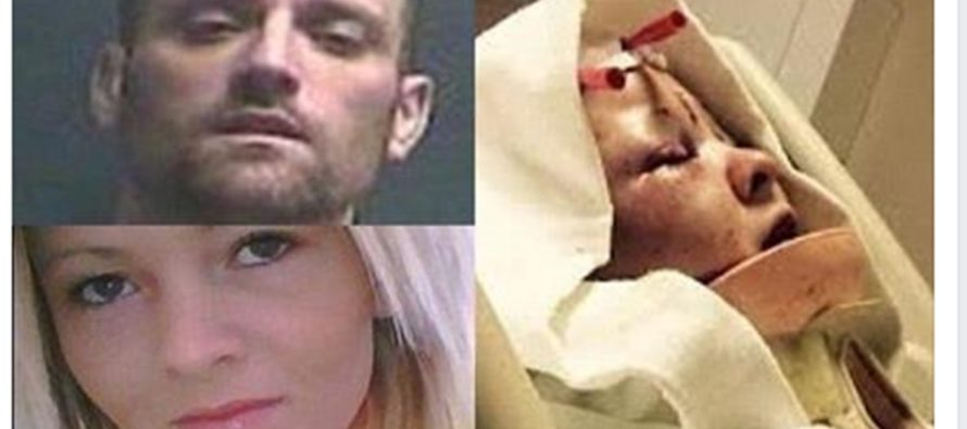 Jealous Man Scalps Girlfriend, Then Lets His Pitbull Have Way With Her, Then Decides To…