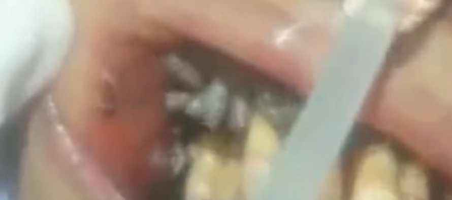 VIDEO: Dentist opening up patient's mouth to find wriggling MAGGOTS in between their yellow teeth