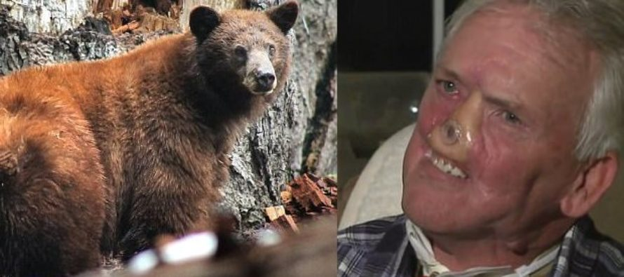 Doctors Save Nearly Lifeless Hunter Whose Face Was Shredded By Grizzly Bear [VIDEO]